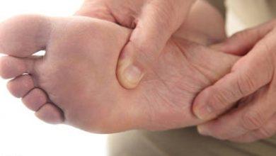 Photo of طريقة علاج غرغرينا القدم السكري