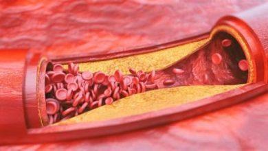 Photo of علماء أمريكيون يتمكنون من تحديد البروتين المنظم للالتهابات في مرض تصلب الشرايين